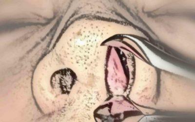 Desvio de Septo Nasal Anterior