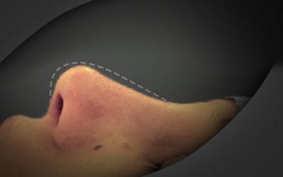 Rinoplastia Fechada – Descrição de Caso