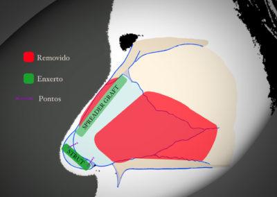 Rinoplastia Fechada - Descrição de Caso 1
