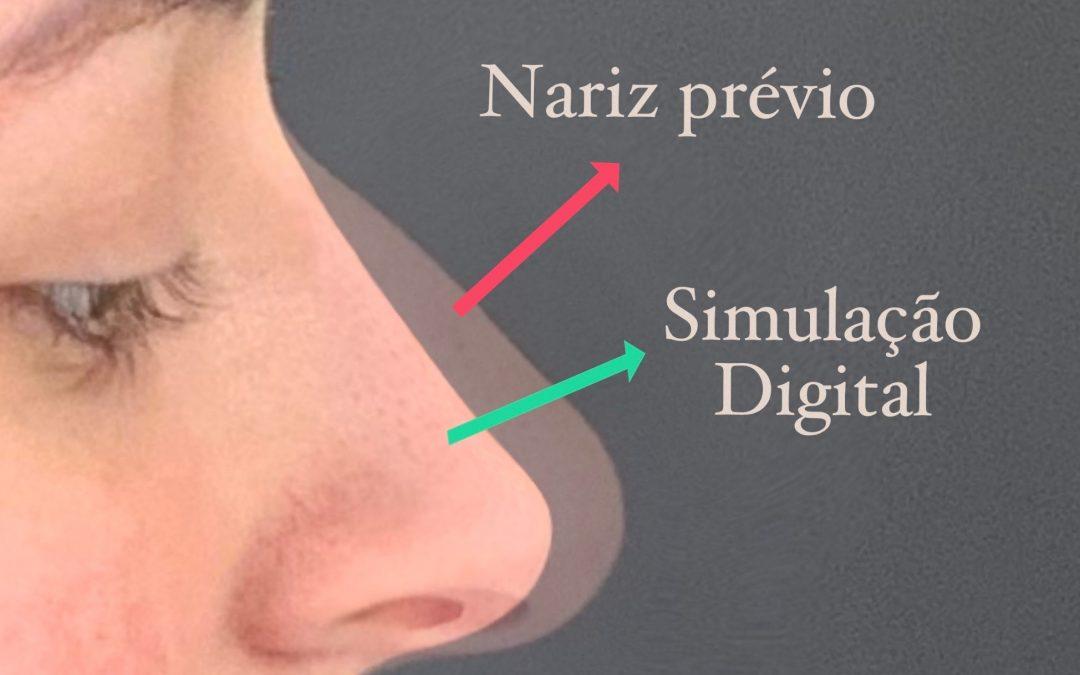 Simulação Digital na Rinoplastia
