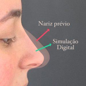 Simulação Digital na Rinoplastia 1